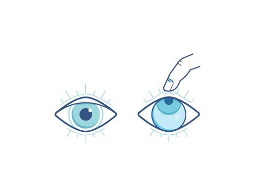Oko wpatrujące się w górę w trakcie gdy soczewka kontaktowa jest wyjmowana palcem