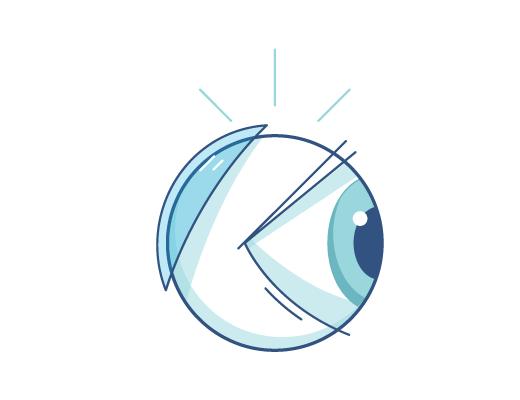 Grafiki soczewki kontaktowej z tyłu gałki ocznej
