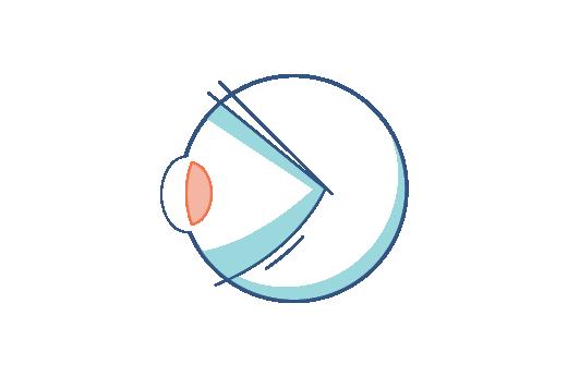 Grafika oka z prezbiopią