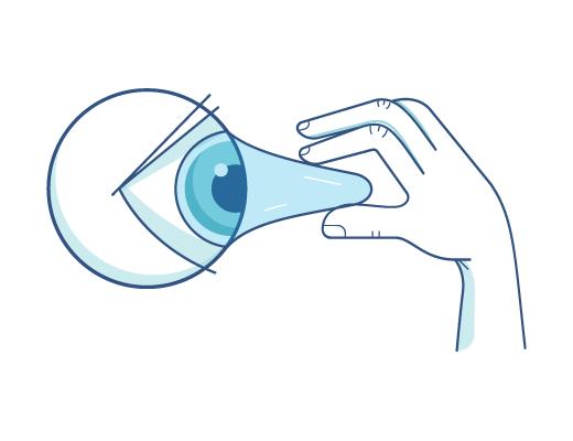 Wyciąganie soczewki z oka