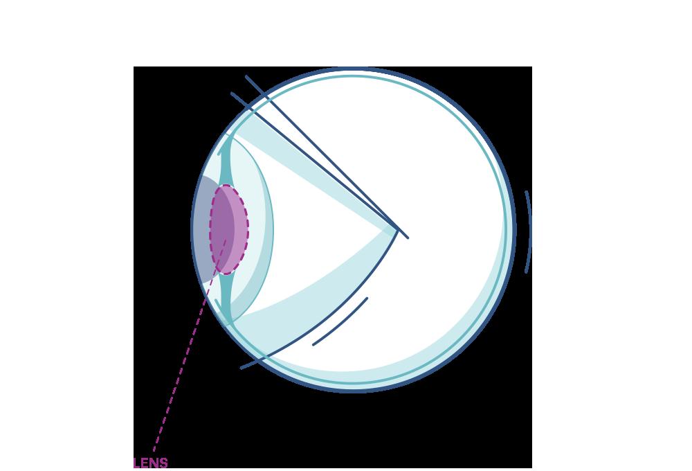 Grafika oka z zaznaczoną soczewką
