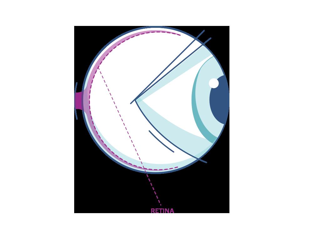 Grafika oka z zaznaczoną siatkówką