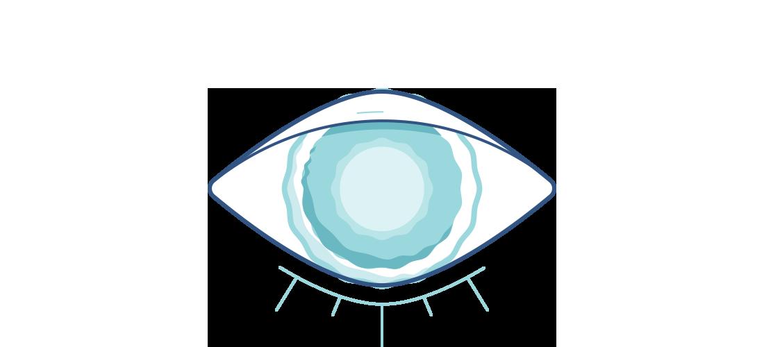 Grafika zamglonego oka