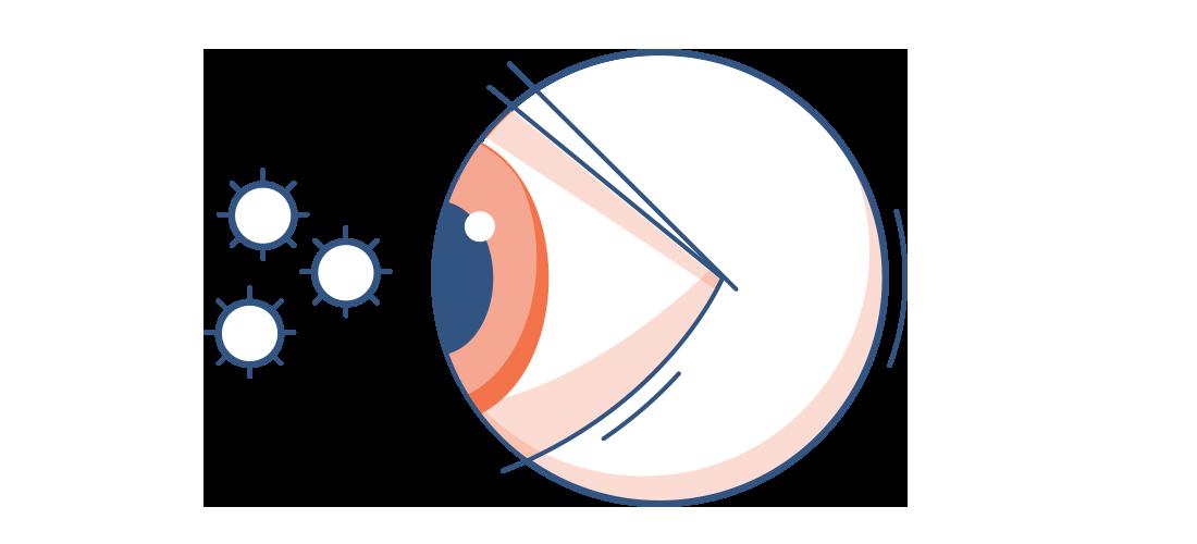Grafika zaczerwienionego oka oraz pyłków
