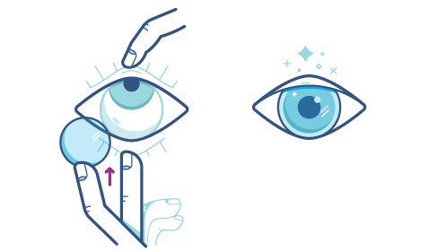 Technika umieszczania soczewek kontaktowych w oku