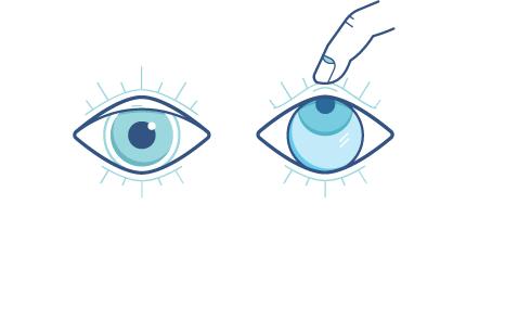 Oko skierowane do góry z palcem próbującym wyciągnąć soczewkę kontaktową