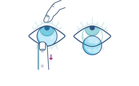 Usuwanie soczewki kontaktowej za pomocą palca wskazującego skierowanego do dolnej powieki