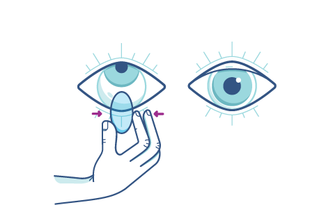 Delikatnie ściskanie soczewki kontaktowej w celu jej usunięcia z oka